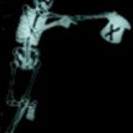 X–Ray